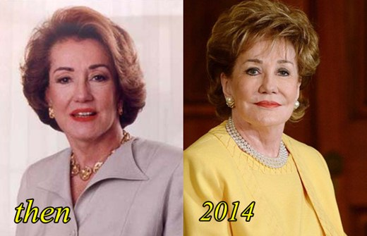 Elizabeth Dole Plastic Surgery Before and After