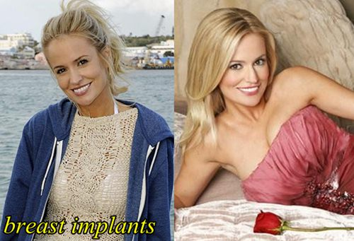 Emily Maynard Plastic Surgery Before After Breast Implants