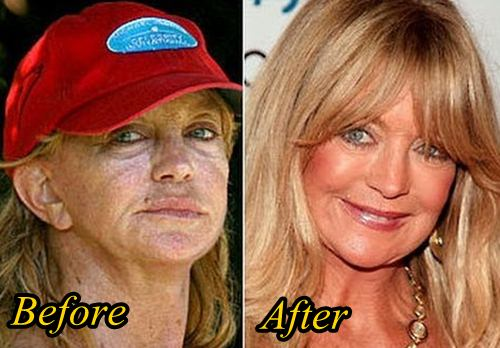 Goldie Hawn Plastic surgery Before After (1)