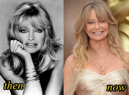 Goldie Hawn Plastic Surgery