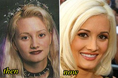 Holly Madison Plastic surgery Before and After