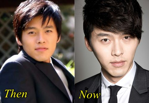 Hyun Bin Plastic Surgery Before and After Nose Job