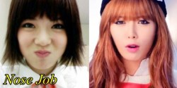 Hyuna Plastic Surgery Before and After Nose Job