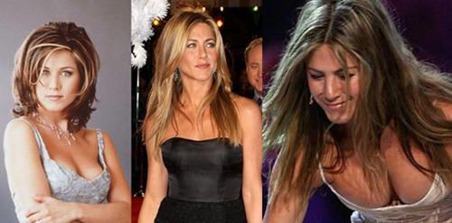 Jennifer Aniston Breast Implants