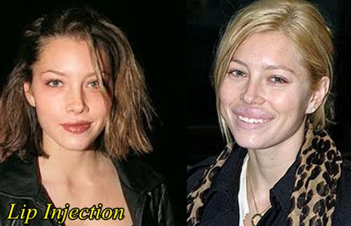 Jessica Biel Plastic Surgery Lip Injection
