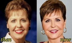 Joyce Meyer Plastic Surgery Before and After