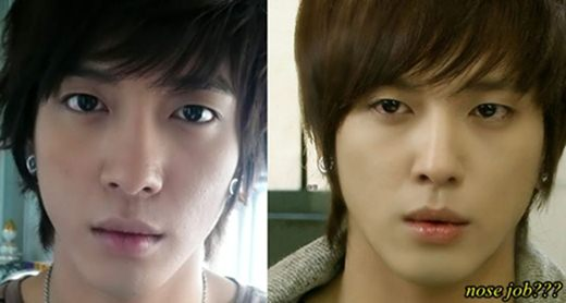 Jung Yong Hwa Plastic surgery Before and After Nose job