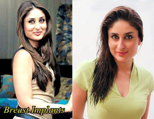 Kareena Kapoor Breast Implants