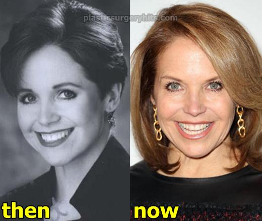 Katie Couric Plastic Surgery Before and After