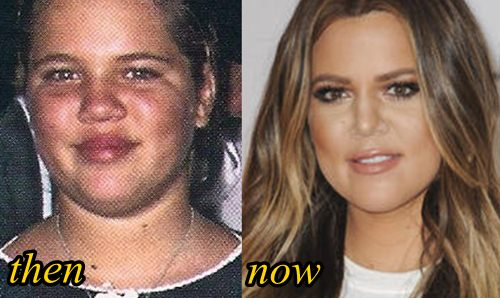Khloe Kardashian Plastic Surgery Before and After
