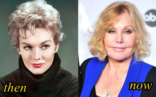 Kim Novak Plastic Surgery Before after