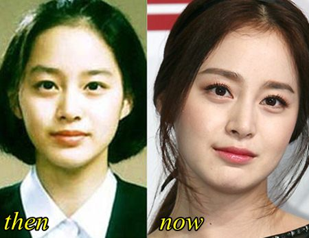 Kim Tae hee Plastic Surgery Before and After