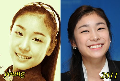 Kim Yuna Plastic Surgery Before and After Picture (rumor)