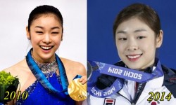 Kim Yuna Plastic Surgery Before and After (rumor)