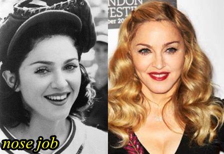 Madonna Nose Job