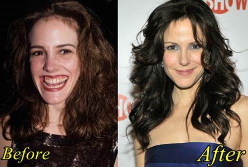 Mary Louise Parker Plastic Surgery, Botox, Facelift, Nose job