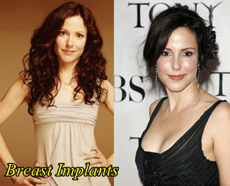 Mary Louise Parker Plastic Surgery Breast Implants