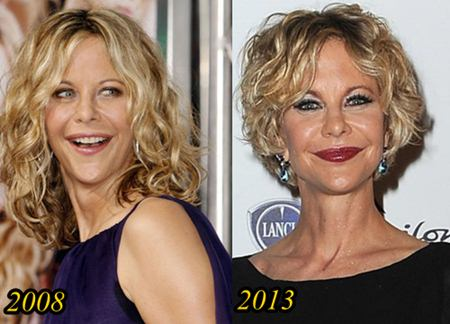 Meg Ryan Plastic Surgery Disasters Images All Disaster Msimagesorg