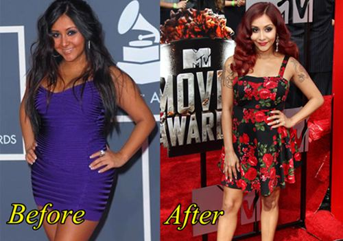 Nicole Polizzi (Snooki) Plastic Surgery Before and After