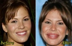Nikki Cox Plastic Surgery Gone wrong Before and After