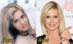 Olivia Newton John Plastic Surgery Before and After