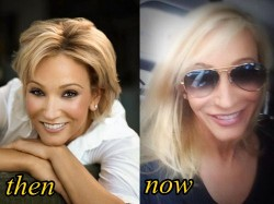 Paula White Plastic Surgery Before and After Facelift