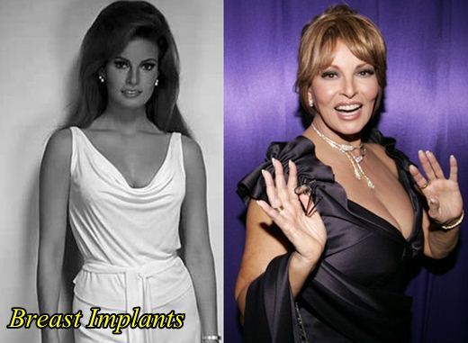 Raquel Welch Plastic Surgery Breast implants