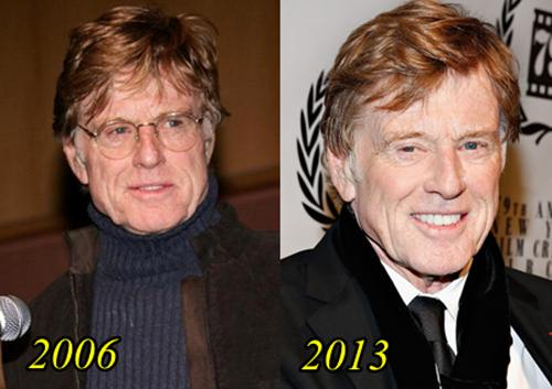 Robert Redford Plastic Surgery Before After