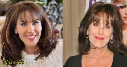 Robin McGraw Plastic Surgery Nose Job