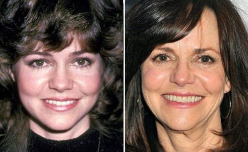 Sally Field Plastic Surgery Photo