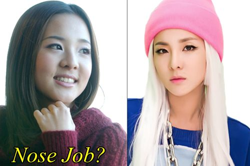 Sandara Park Plastic Surgery Nose Job
