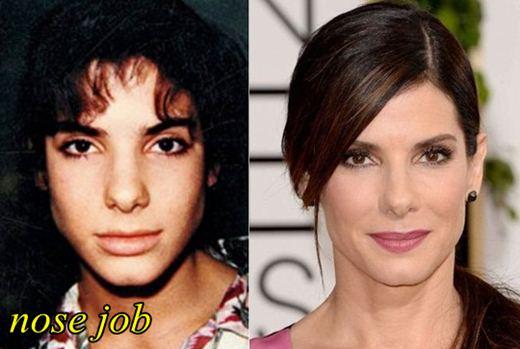 Sandra Bullock Plastic Surgery Nose Job