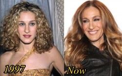 Sarah Jessica Parker Plastic Surgery Before and After