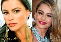 Sofia Vergara Plastic Surgery Before and After Nose Job