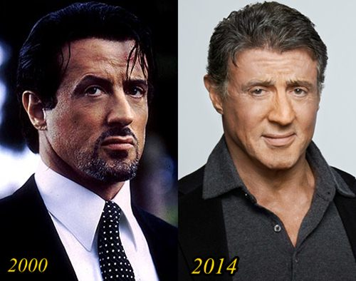 Sylvester Stallone Plastic Surgery Before and After Pictures