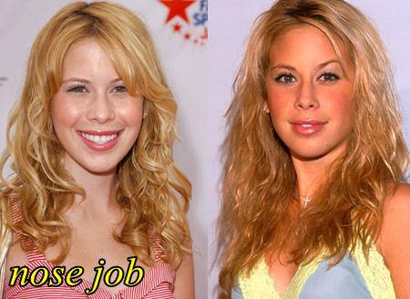 Tara Lipinski Plastic Surgery Nose Job