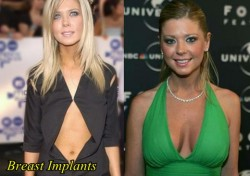 Tara Reid Plastic Surgery Before and After Breast Implants
