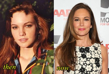 Diane Lane Plastic Surgery Before After
