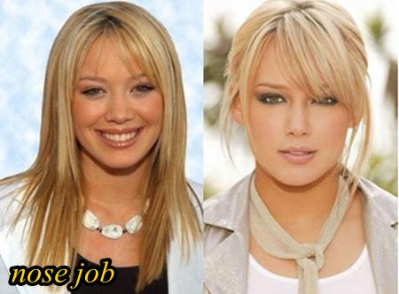 Hilary Duff Plastic Surgery Nose Job