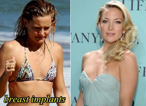 kate hudson plastic surgery before after breast implants