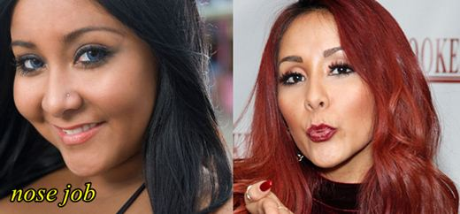 Snooki Plastic Surgery Nose Job