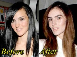 Ali Lohan Plastic Surgery Before and After