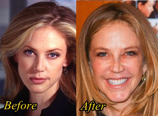 Ally Walker Plastic Surgery Before and After