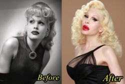 Amanda Lepore Plastic Surgery Before and After