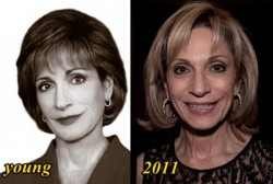 Andrea Mitchell Plastic Surgery Before and After