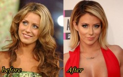 Aubrey O Day Plastic Surgery Nose Job, Fillers