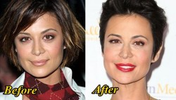 Catherine Bell Plastic Surgery Before and After
