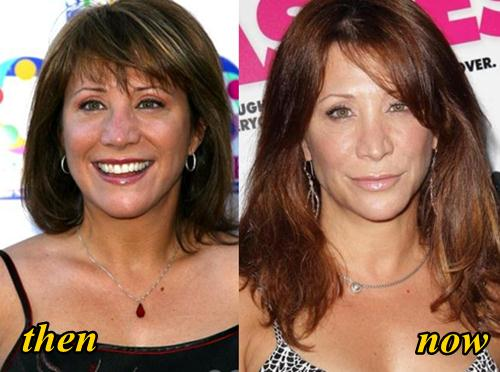 Cheri Oteri Plastic Surgery Before and After