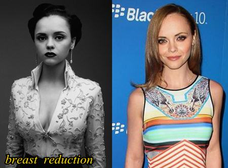 Christina Ricci Plastic Surgery Breast reduction