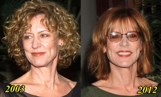 Christine Lahti Plastic Surgery Before and After